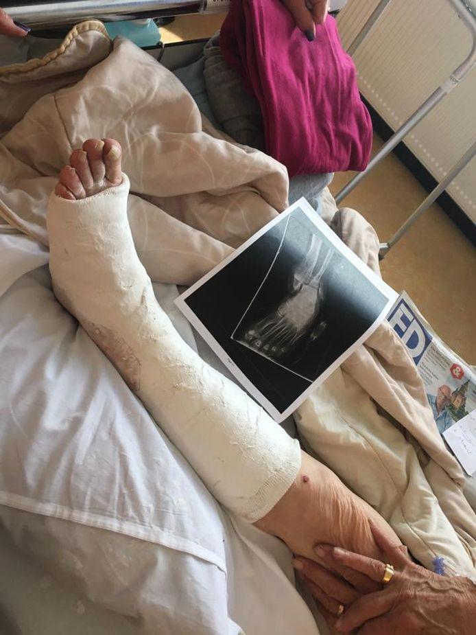 De oma van Roos Rokven ligt in het ziekenhuis met een gecompliceerde beenbreuk nadat ze werd aangereden door een scooter.