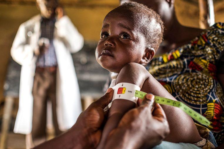 Een kindje wordt opgemeten in het kader van een programma voor ondervoede kinderen van het Wereldvoedselprogramma in Congo.  Beeld AFP