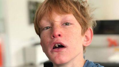 """Papa van Jerom (14) schrijft emotionele open brief: """"Pas de wet aan zodat kinderen met ernstige beperking langer in basisonderwijs kunnen blijven"""""""