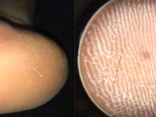 Stekende pijn in voet patiënt veroorzaakt door zeer zeldzame haarsplinter