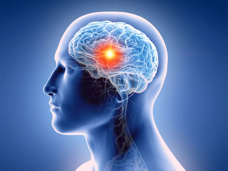 Diepe hersenstimulatie is doeltreffend bij dwangstoornis