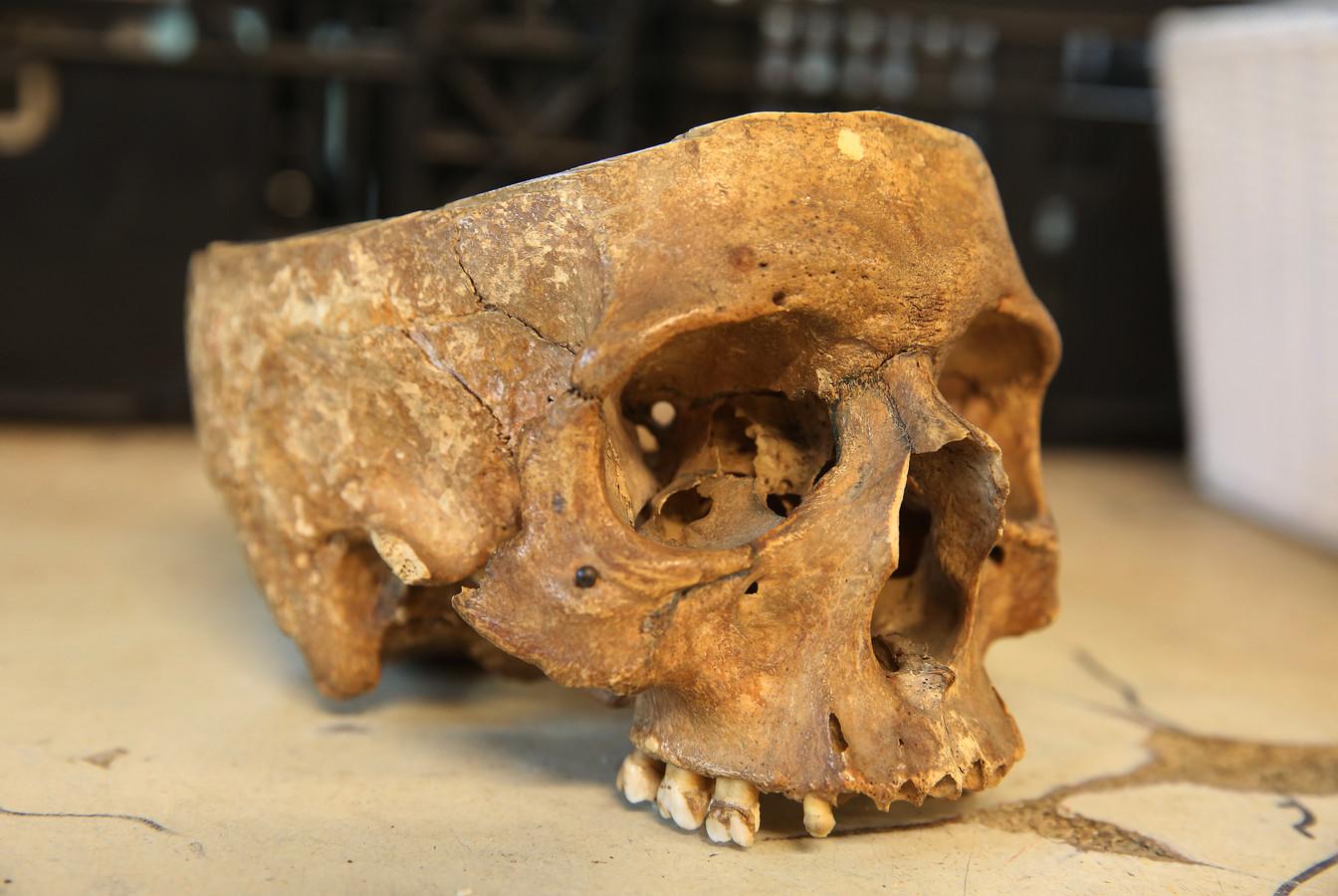 De forensische opsporing probeert de leeftijd vast te stellen van de schedel die gisteren opdook bij Kringloop Twello.