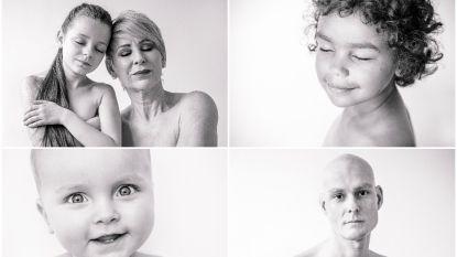 """Veertig kankerpatiënten poseren in ontbloot bovenlijf in fotoboek: """"Ik wil dat Mace (1) andere kindjes hoop geeft"""""""