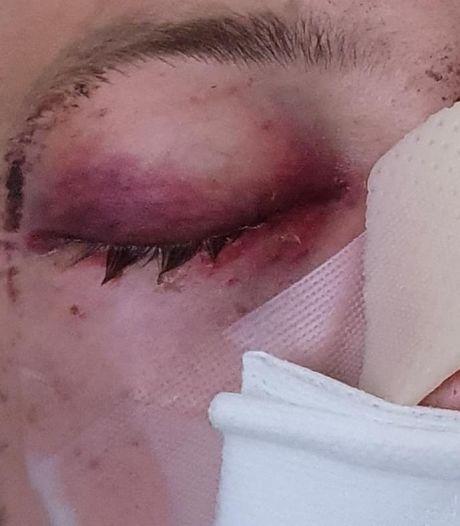 Raymond (21) kan amper praten na 'geweldsexplosie' in bijzijn van vriendin: 'Dader kwam uit het niets'