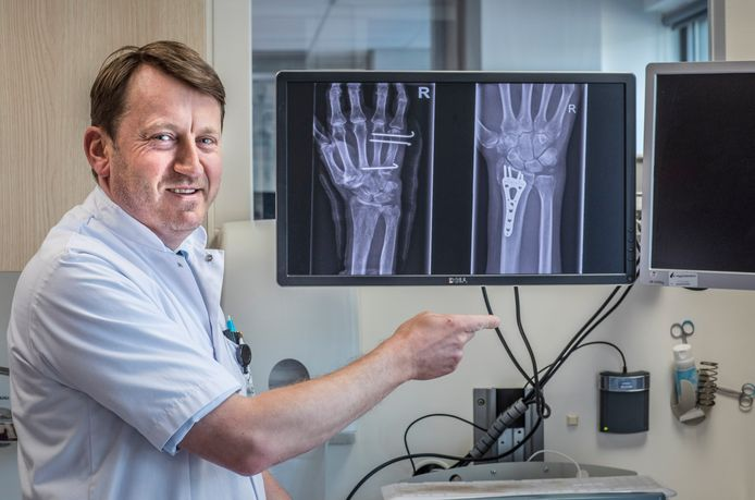 Traumachirurg Alexander Greeven in het HagaZiekenhuis. Op de röntgenfoto's rechts de oude methode met plaatje en links de nieuwe methode zonder plaatje en alleen met pennen.