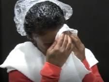 Nachtmerrie voorbij: topchirurg krijgt na behandeling van 4 uur superlijm uit kapsel van vrouw