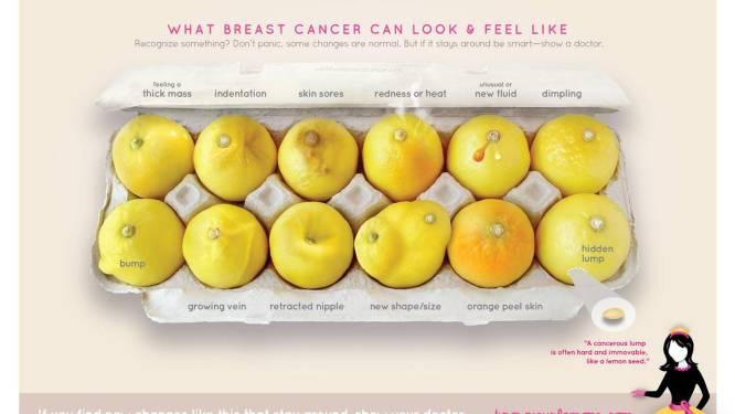 Ken je citroenen: deze foto toont exact hoe borstkanker er kan uitzien
