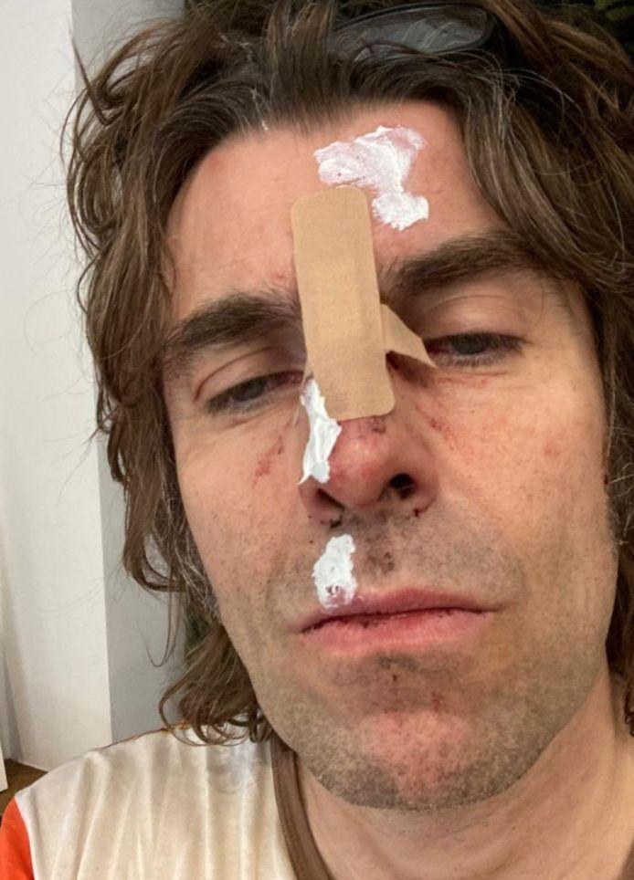 Liam Gallagher deelde de verwondingen aan z'n gezicht op Twitter.