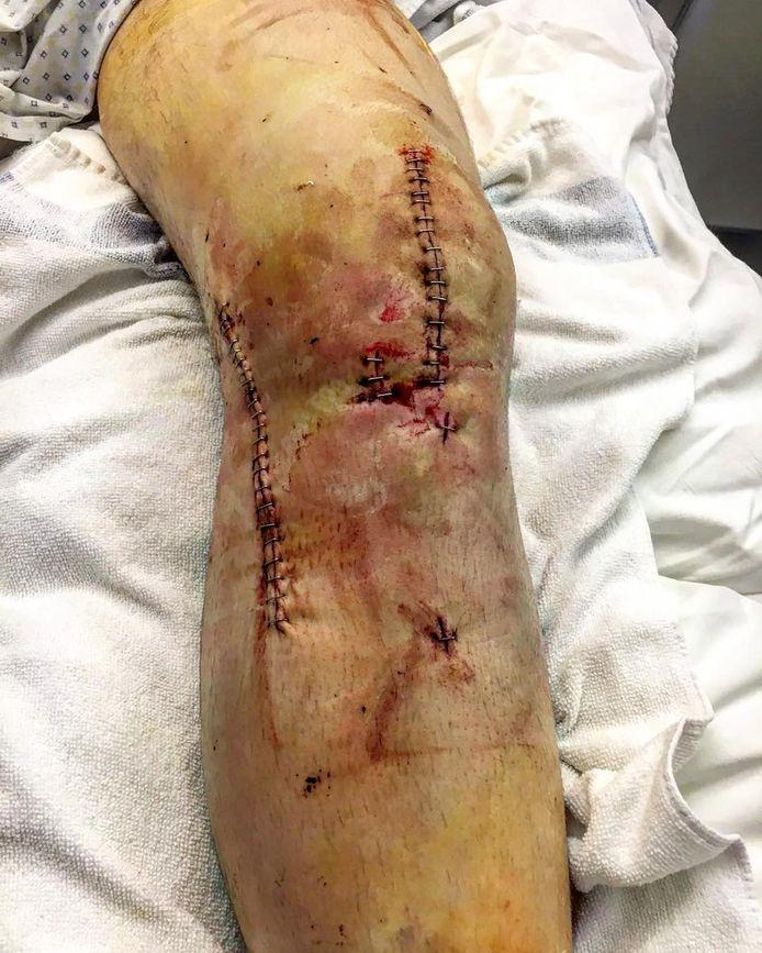 Het scheenbeen van Armand Marchant na zijn val drie jaar geleden.