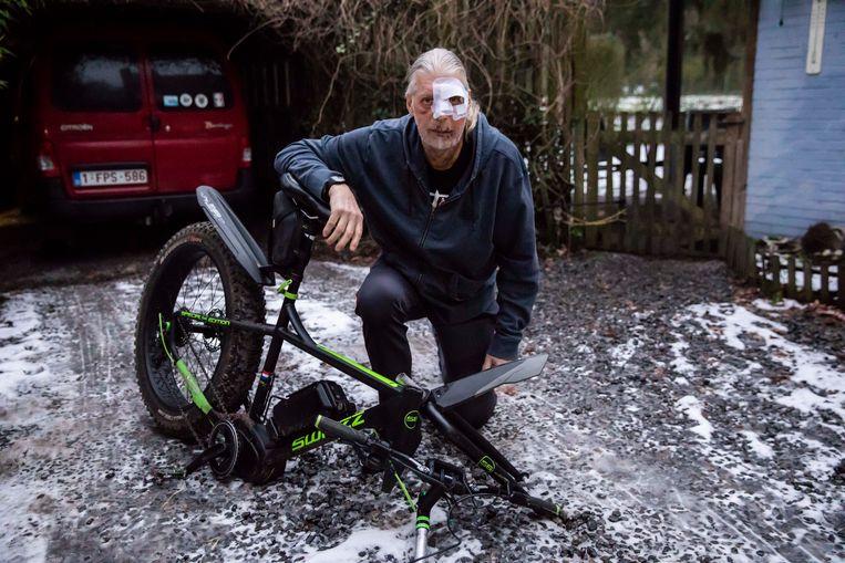 Jos na het ongeval, samen met zijn kapotte fiets.