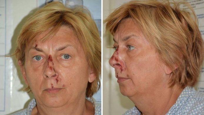 De vrouw heeft verwondingen in het aangezicht.