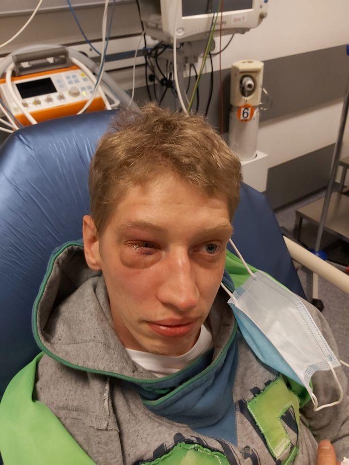 Kevin s'est retrouvé à l'hôpital mardi après-midi après avoir été agressé dans un parc.