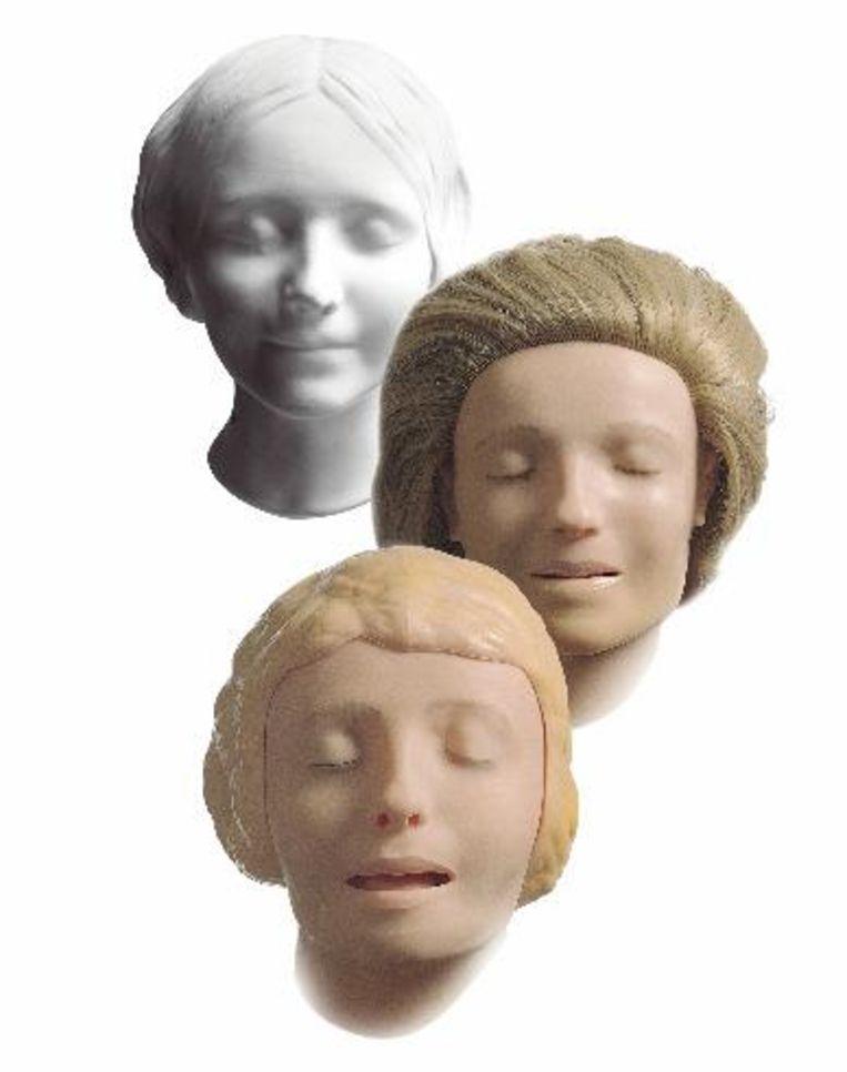 Annie, van dodenmasker naar reanimatiepop. Beeld British Medical Journal