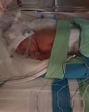 Baby Herman maakt het goed, maar ligt nog wel in een couveuse in het Arnhemse Rijnstate Ziekenhuis.