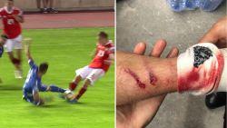 Standard-verdediger krijgt rood voor bikkelharde tackle, aanzienlijke schade bij Russisch 'slachtoffer'