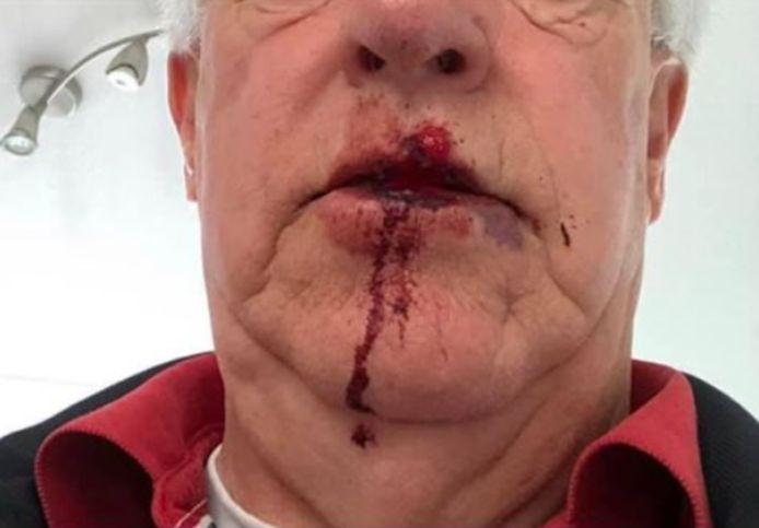 De 75-jarige Henk Rensen na de mishandeling vanochtend.
