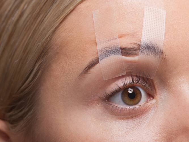 """Gert Verhulst is lang niet de enige die een ooglidcorrectie laat doen. """"Sinds corona is er meer vraag naar"""", zegt plastisch chirurg"""