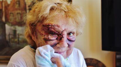 """Jacqueline (78) met baseballknuppel in elkaar geslagen, dader spoorloos: """"Hij liet me voor dood achter"""""""
