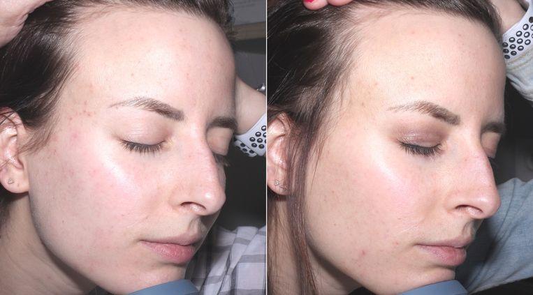 links: voor - rechts: na 2 maanden