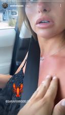 Hazes geeft zijn vriendin in de video die hij deelt een pets op haar verbrande huid.