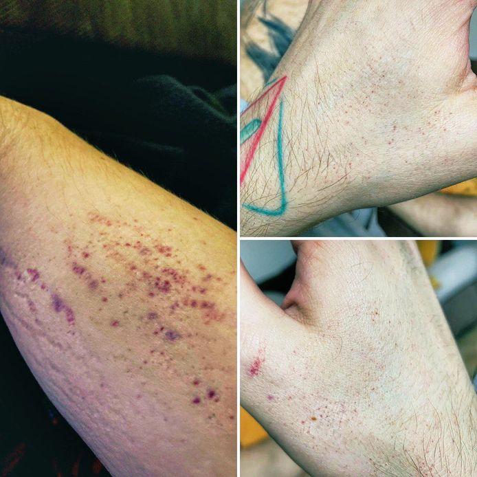 Eric (Charleroi) subit de nombreuses séquelles de sa maladie.