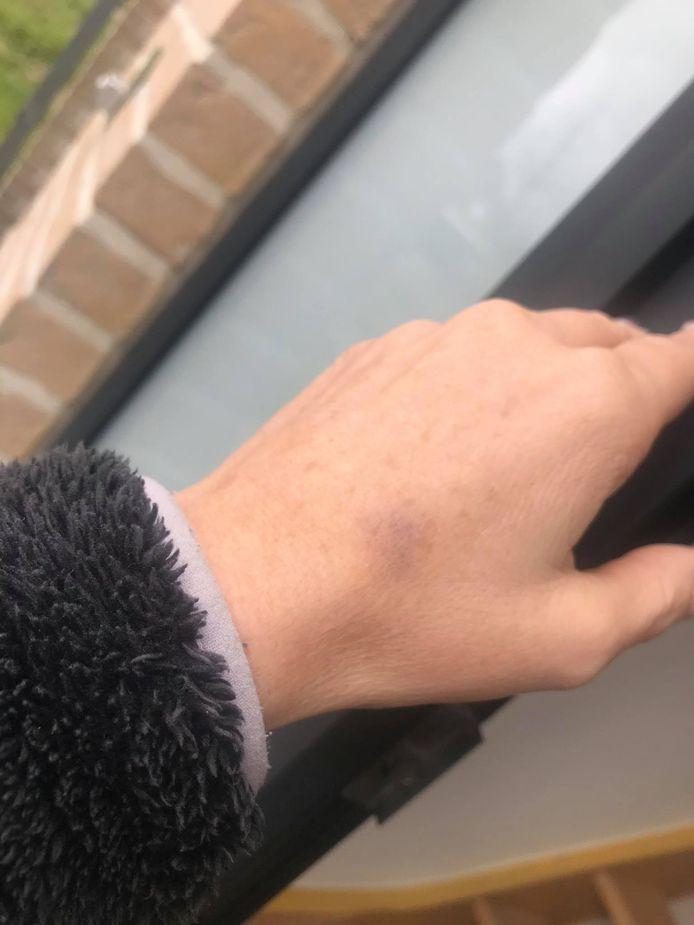 Enkele leden verwondden Annick onder meer aan haar linkerhand.