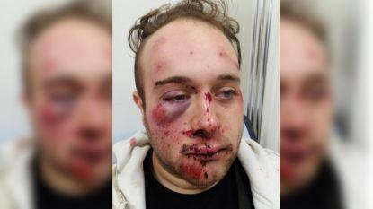 Brian (21) zwaar gehavend en bewusteloos achtergelaten, man vraagt 500 euro voor 'gouden tip'