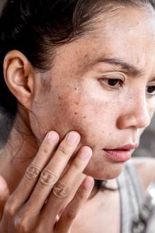Un chirurgien esthétique partage son astuce pour éviter les taches brunes