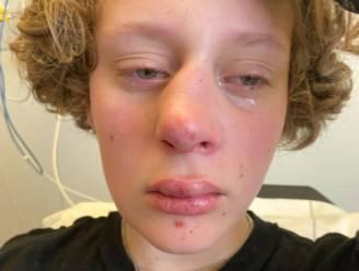 Nederlandse jongere (14) zwaar mishandeld in speeltuin na opmerkingen over geslacht