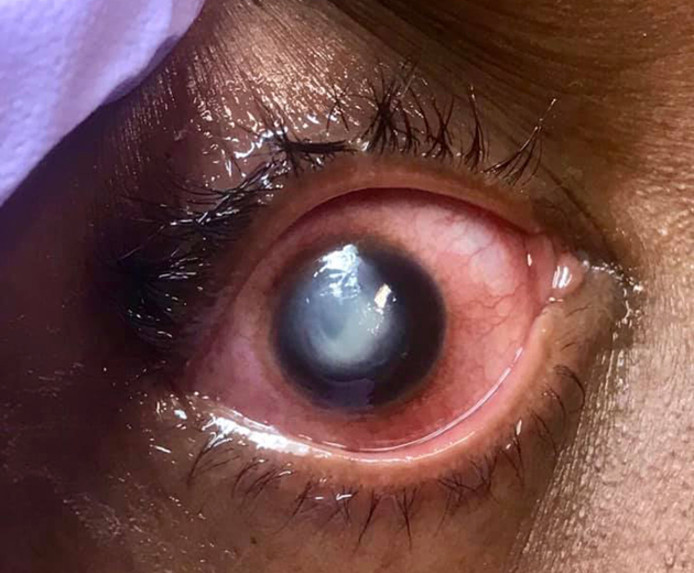 Un ophtalmologue a partagé ces images pour disuader ses patients de dormir avec leurs lentilles.
