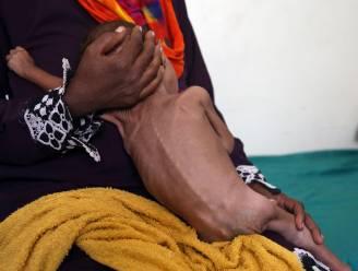16 miljoen mensen in Jemen riskeren hongerdood