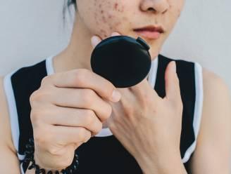 Primeur: gezondheidsinstituut in Verenigd Koninkrijk wil dat mensen met ernstige acne voortaan psychische hulp krijgen