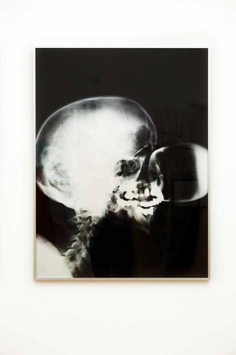 X-Ray,(1991). Beeld Io Cooman