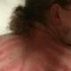 Als je deze foto ziet dan denk je: dit moet de pijnlijkste massage ooit zijn geweest