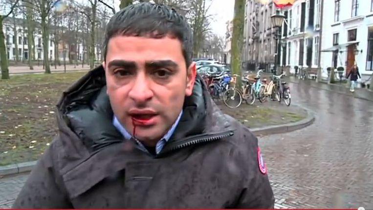 De verslaggever hield aan de mishandeling een losse tand, pijn in zijn kaak en een bloedlip over. Beeld screenshot