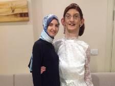 Turkse is met 2,15 meter de langste vrouw ter wereld