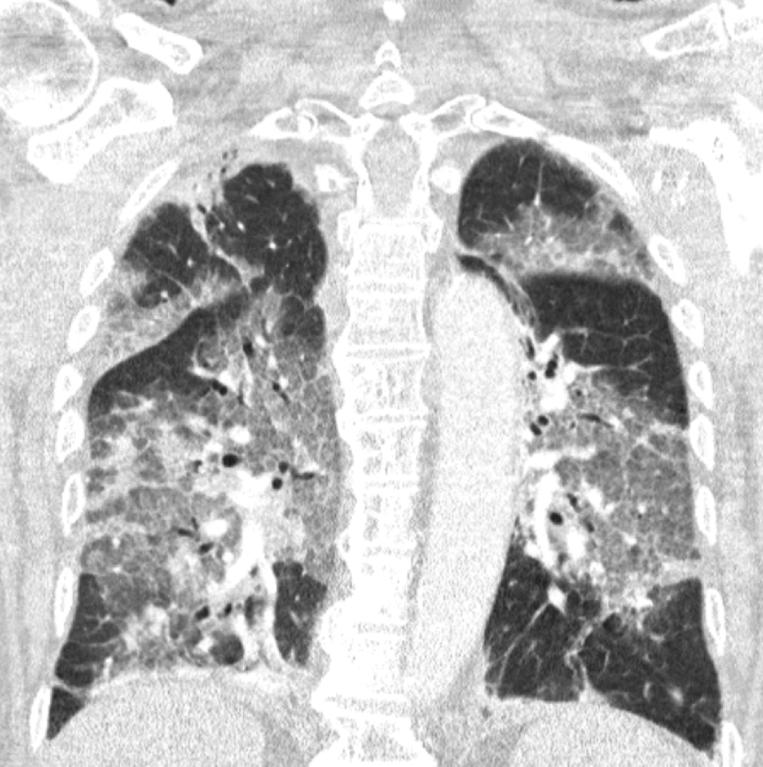De longfoto van de getroffen patiënt. De witte vlekken laten zien waar de longen ontstoken zijn, stelt een woordvoerder van het ziekenhuis. Beeld Zuyderland