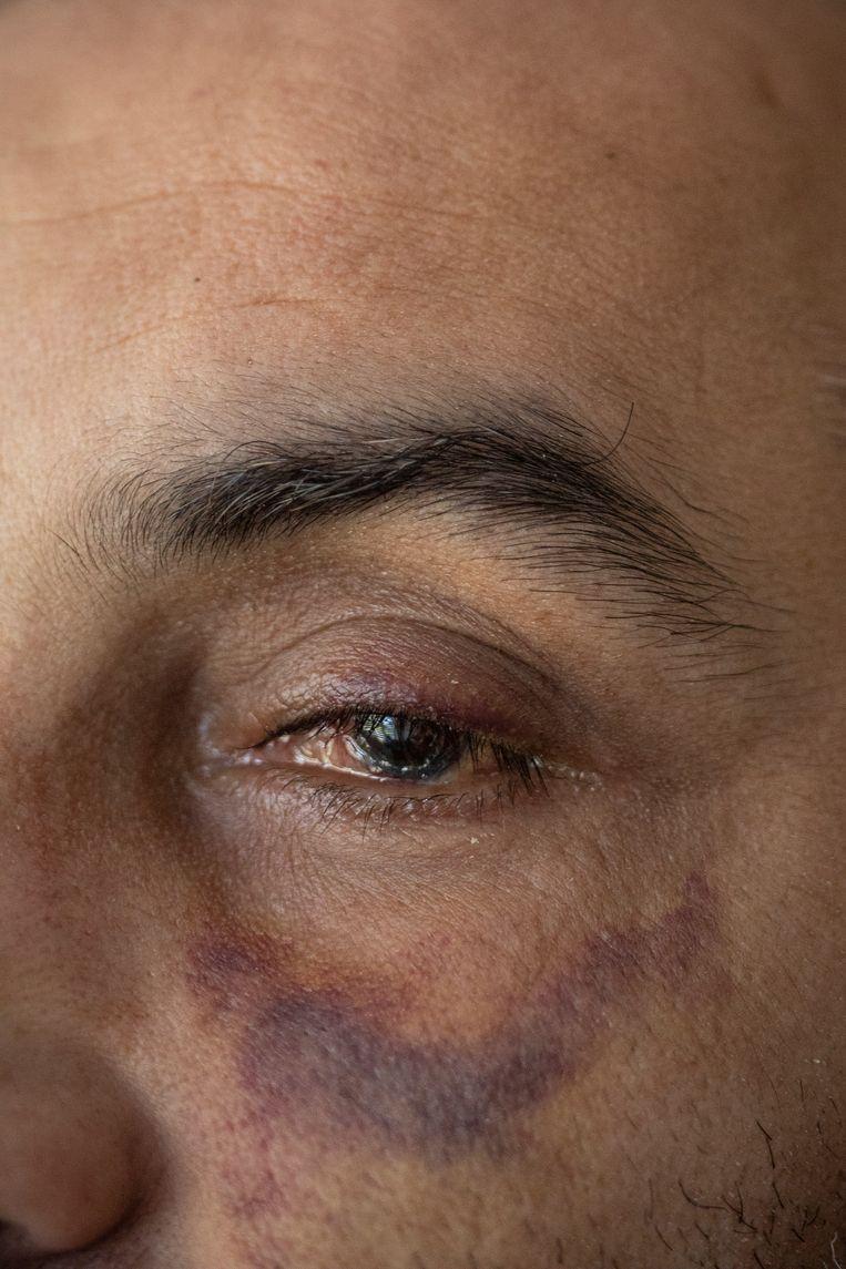 Afgelopen week heeft Rachid gehoord dat zijn oog niet meer gered kan worden. Beeld Marc Driessen
