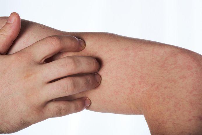 Een hand krabt aan een geïrriteerd stukje huid.