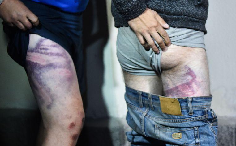 Opgepakte demonstranten tonen na vrijlating uit de gevangenis hun verwondingen. Deze hebben zij opgelopen na martelingen door de veiligheidsdiensten Beeld AFP