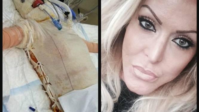 Een nieuw gezicht voor 'menselijke vuurbal': Dana werd in brand gestoken door jaloerse vrouw