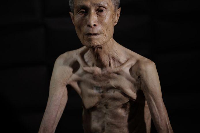 Getekend voor het leven. Sumitery Taniguchi (86) overleefde de Nagasaki-bom.