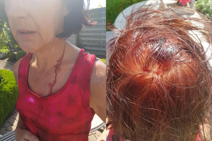 Marleen Audenaert plaatste enkele foto's op facebook nadat ze zondagochtend werd aangevallen door een agressieve buizerd.