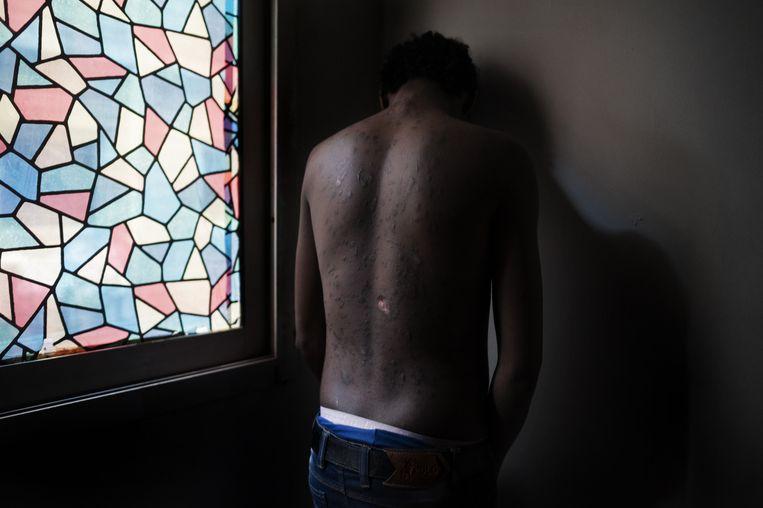 Caïro, Egypte, maart 2014. Een Eritrese vluchteling toont zijn littekens. Tijdens zijn vlucht door de Sinaï-woestijn werd zijn huid bewerkt met brandend plastic. Beeld Giulio Piscitelli