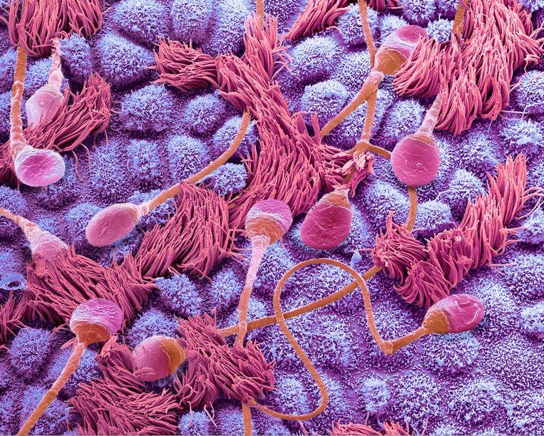 Zaadcellen in een eileider.  Beeld Getty Images/Science Photo Libra