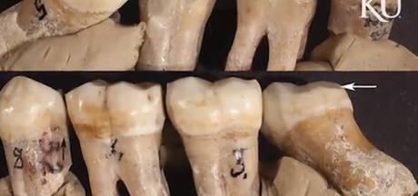 Ook neanderthaler bracht bezoek aan tandarts