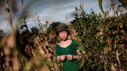 Twee mannen en vrouw krijgen doodstraf omdat ze albino vermoordden en in stukken sneden in Malawi