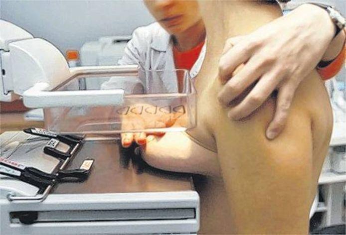De traditionele mammograaf, die een kracht van 12 tot 18 kilo uitoefent, terwijl dat vaak niet nodig is.