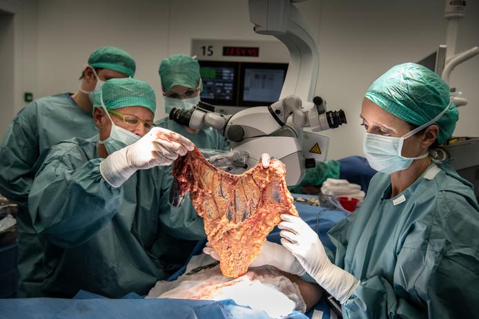 Het vetvlies wordt uit het lichaam gehaald. Van dit 'schort' maken de chirurgen een nieuwe rechterborst voor Caroliene.