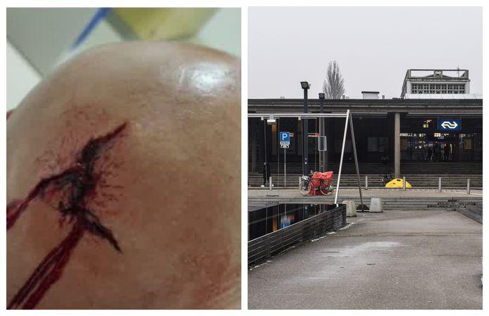 Enschedeër dient klacht in na valpartij op het Stationsplein in Enschede. De man kreeg tien hechtingen in zijn hoofd.